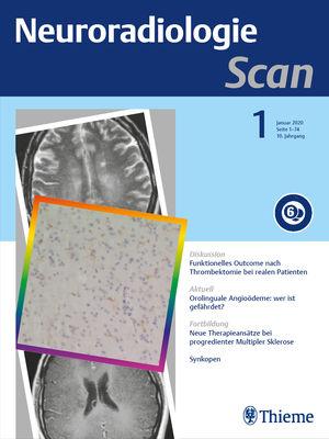 Neuroradiologie Scan