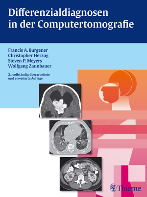 Differenzialdiagnosen in der Computertomografie