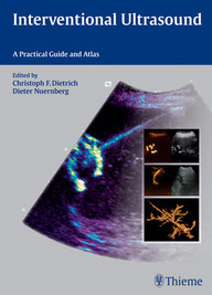Interventional Ultrasound. A Practical Guide and Atlas.