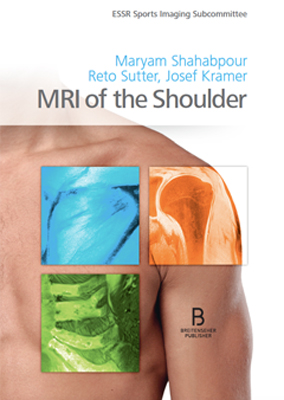 MRI of the Shoulder