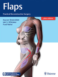 """Zeige Treffer in """"Flaps: Practical Reconstructive Surgery"""""""
