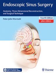 """Zeige Treffer in """"Endoscopic Sinus Surgery: Anatomy, Three-Dimensional Reconstruction, and Surgical Technique"""""""