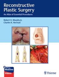 """Zeige Treffer in """"Reconstructive Plastic Surgery: An Atlas of Essential Procedures"""""""