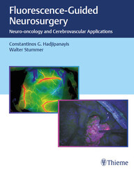 Fluorescence-Guided Neurosurgery: Neuro-oncology and Cerebrovascular Applications