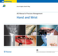 AO Manual of Fracture Management: Hand and Wrist