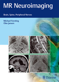 MR Neuroimaging: Brain, Spine, Peripheral Nerves