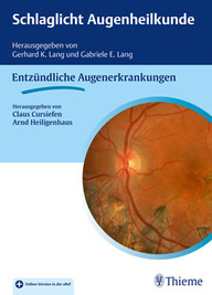 """Zeige Treffer in """"Schlaglicht Augenheilkunde: Entzündliche Augenerkrankungen"""""""