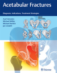 Acetabular Fractures: Diagnosis, Indications, Treatment Strategies