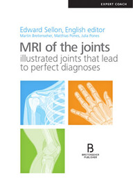 MRI of the Joints