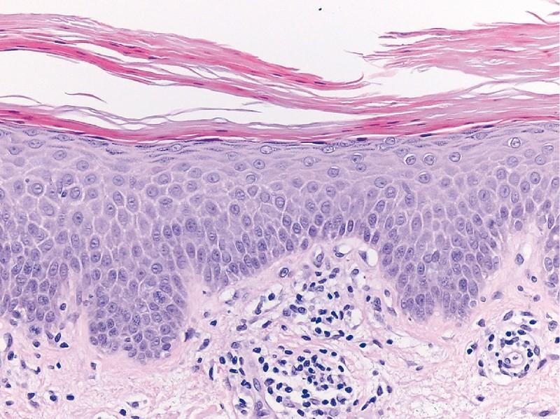 Papillomatosis reticularis