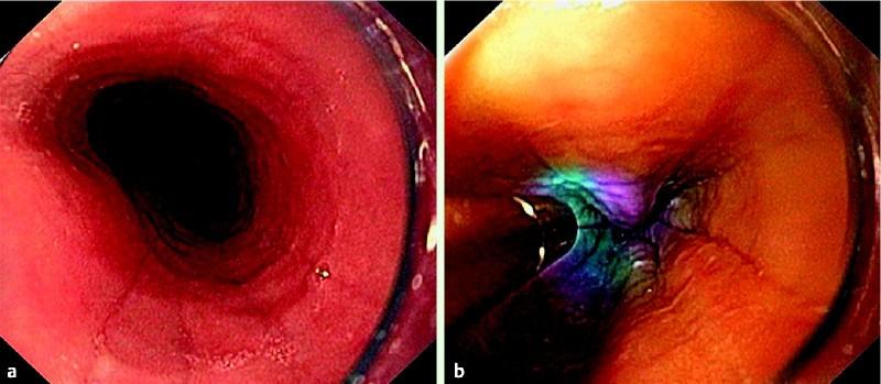 Upper Gi Endoscopy Findings E Videos Eref Thieme