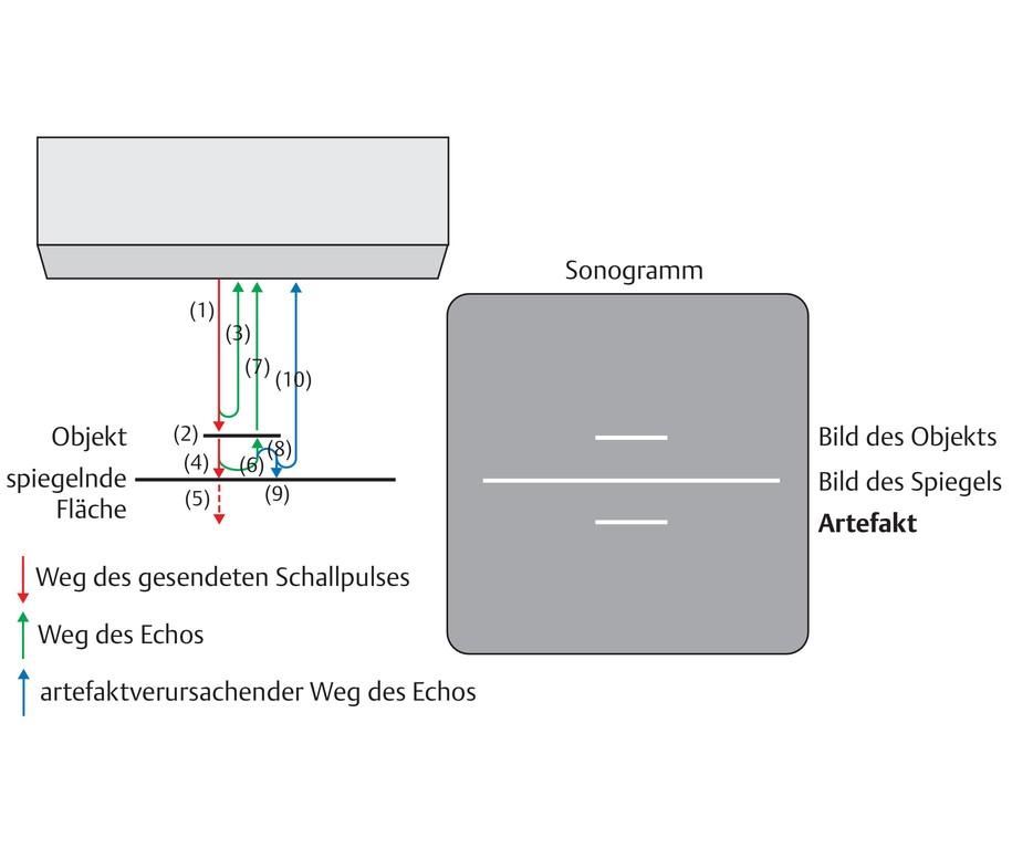 Charmant Intrakraniellen Gefäße Anatomie Bilder - Menschliche ...