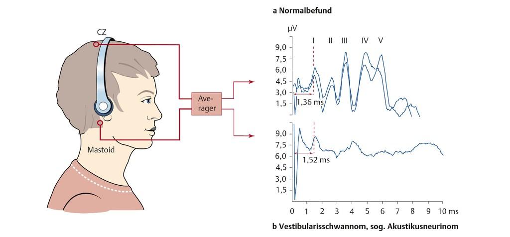 Atemberaubend Hirnnerv 3 Anatomie Bilder - Anatomie Von Menschlichen ...