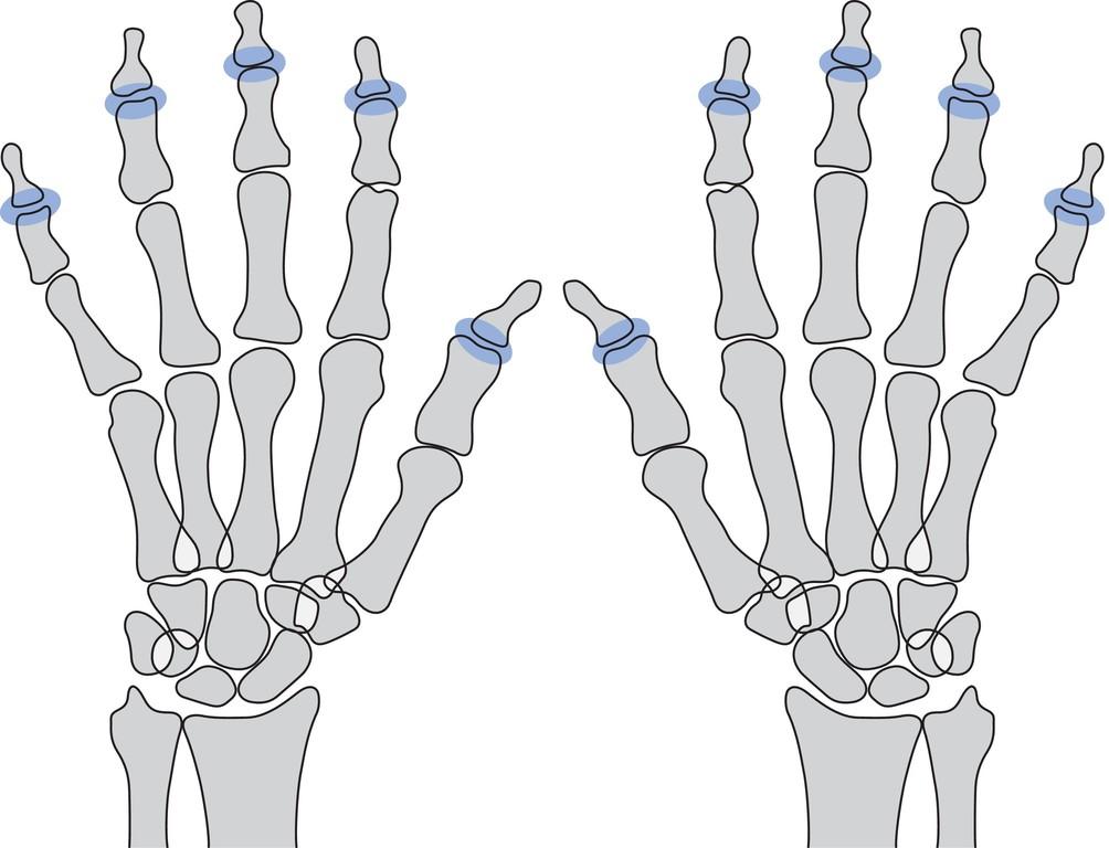 Wunderbar Handknochen Anatomie Galerie - Anatomie Ideen - finotti.info
