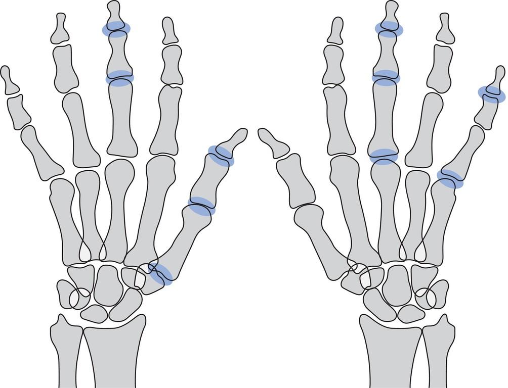 Atemberaubend Anatomie Der Daumen Sehnen Bilder - Menschliche ...