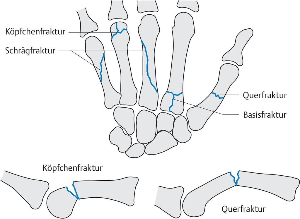Beste Querfrakturen Galerie - Menschliche Anatomie Bilder ...