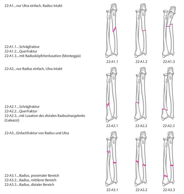 Ziemlich Schrägfraktur Bilder - Menschliche Anatomie Bilder ...