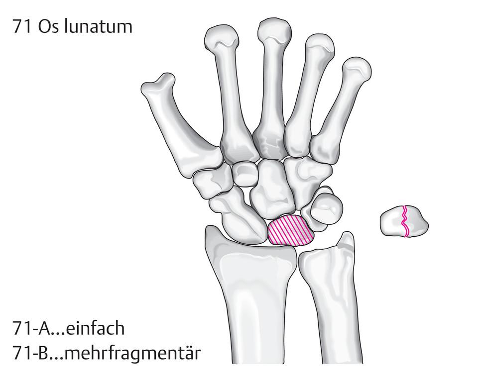 Gemütlich Handwurzelknochen Bild Zeitgenössisch - Menschliche ...