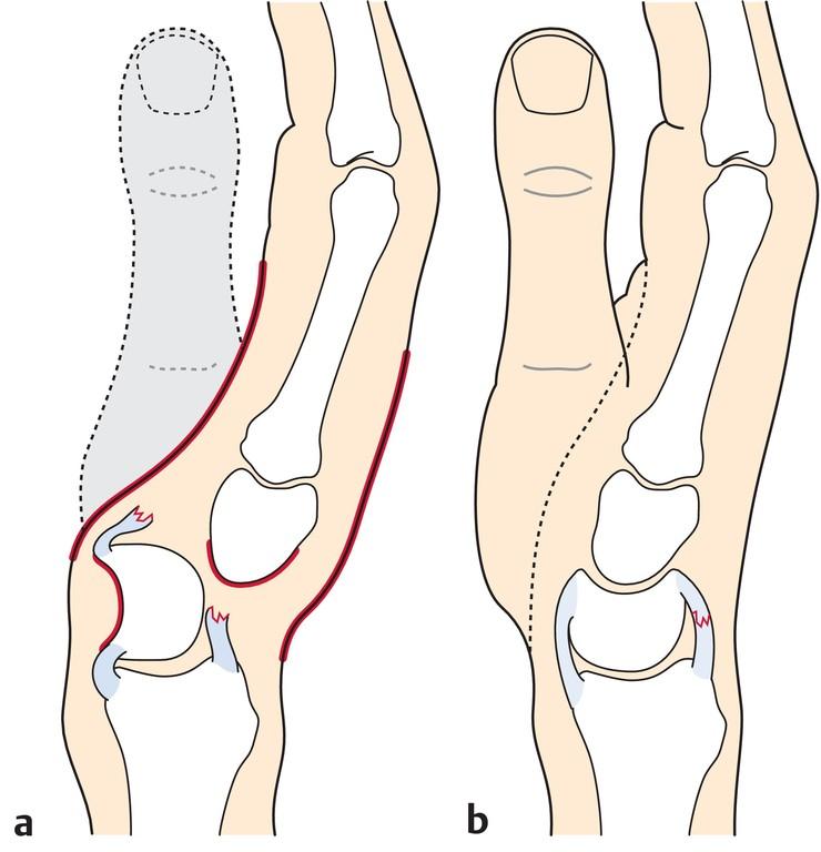 Wunderbar Anatomie Der Hand Und Der Finger Zeitgenössisch - Anatomie ...