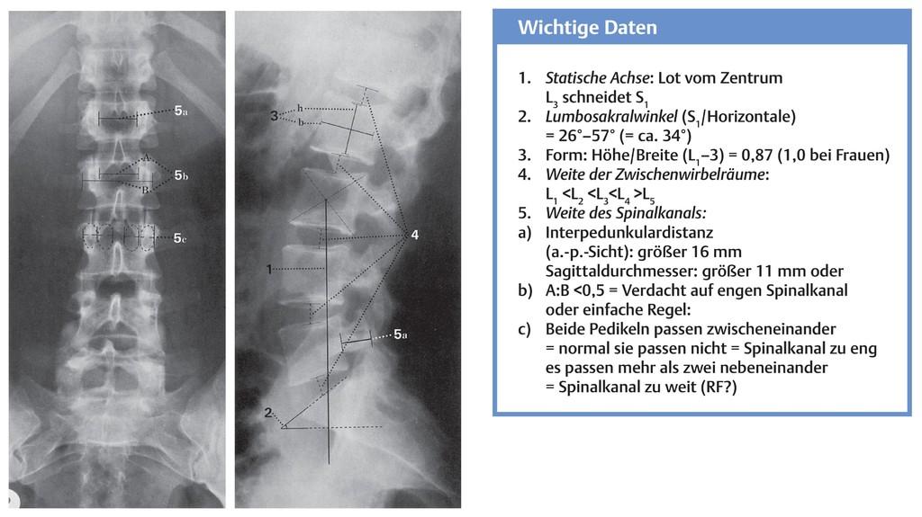 Fein Lendenwirbelsäule Anatomie Mri Galerie - Anatomie Ideen ...