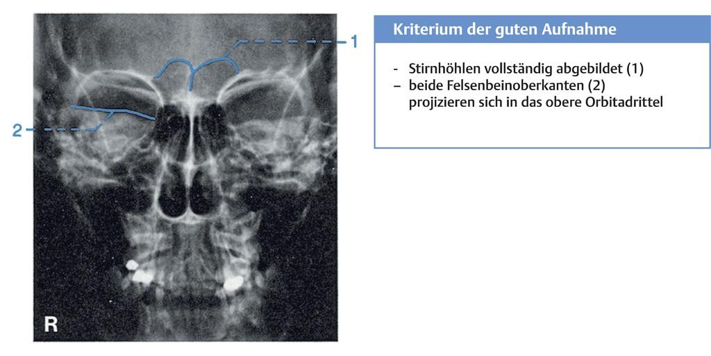 Wunderbar Ct Gesicht Anatomie Ideen - Menschliche Anatomie Bilder ...