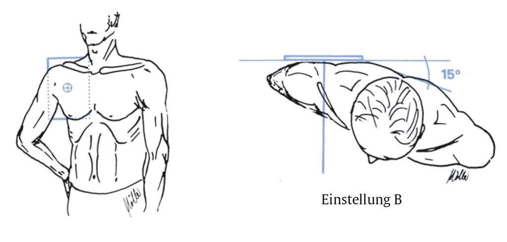 Atemberaubend Anatomie Der Oberen Extremität Venen Fotos - Anatomie ...