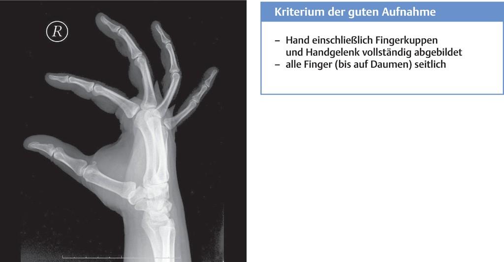 Schön Daumen Der Rechten Hand Anatomie Galerie - Menschliche ...