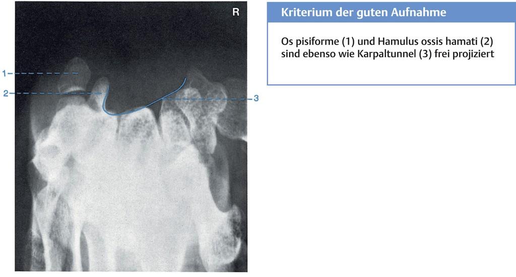 Erfreut Das Gehör Anatomie Physiologie Und Klinische Korrelate ...