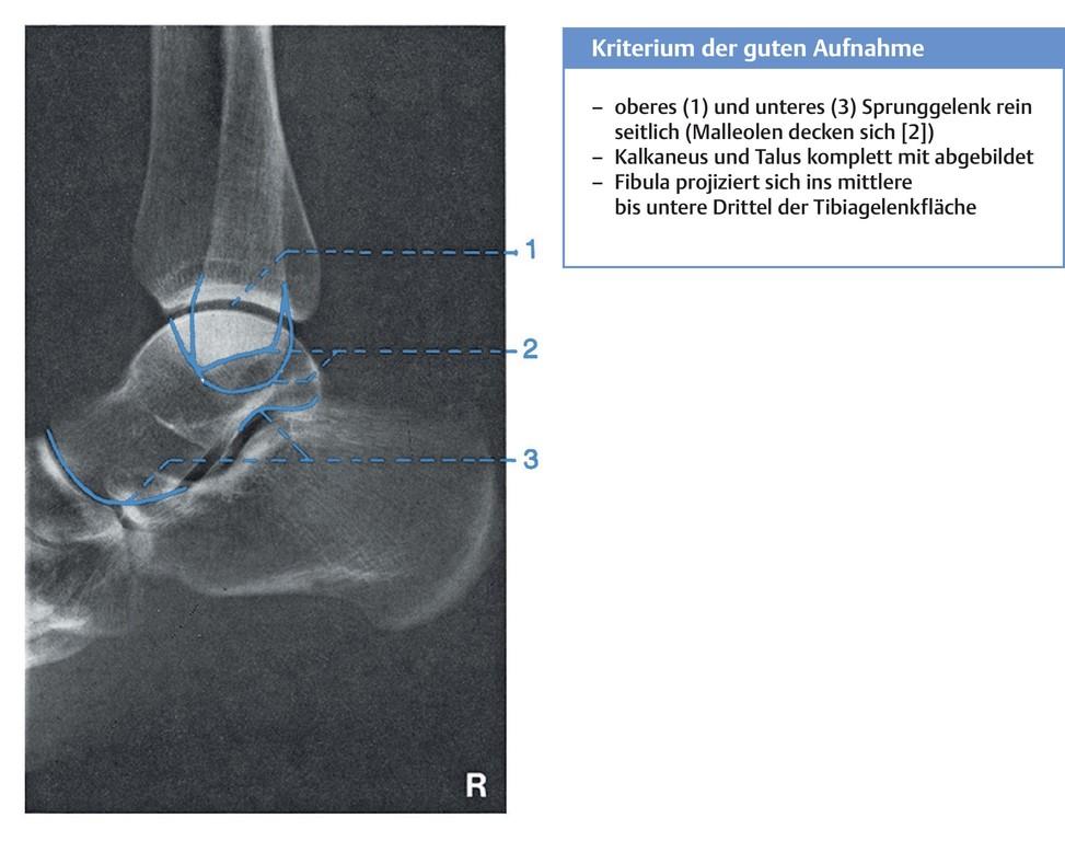 Fantastisch Knöchel Mri Anatomie Bilder - Anatomie Ideen - finotti.info