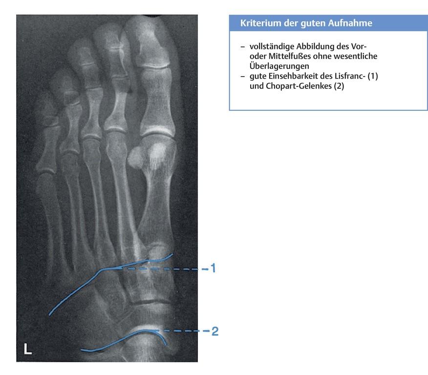 Großartig X Ray Fußanatomie Zeitgenössisch - Menschliche Anatomie ...