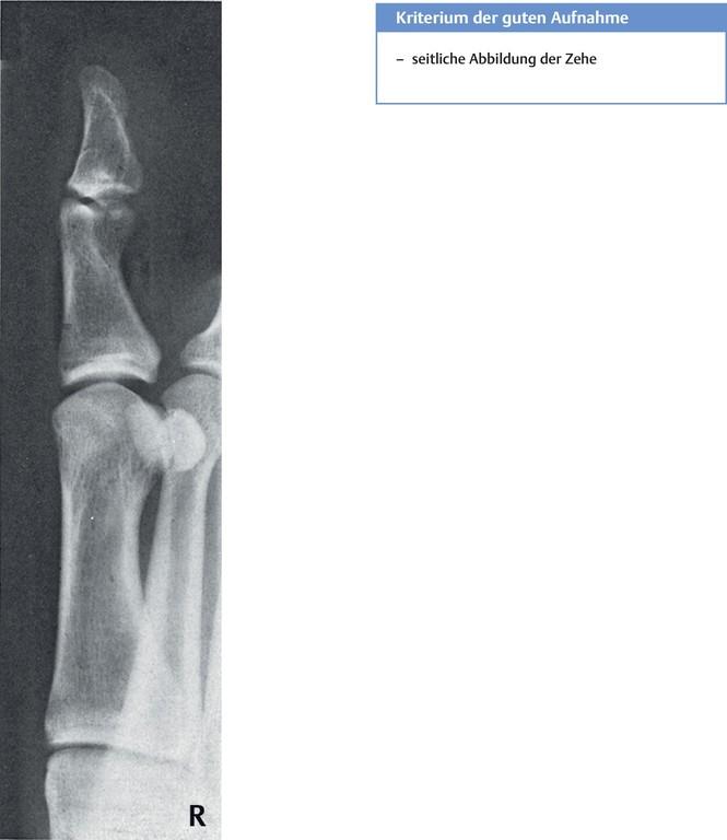 Fein Handknöchel Anatomie Zeitgenössisch - Anatomie Ideen - finotti.info