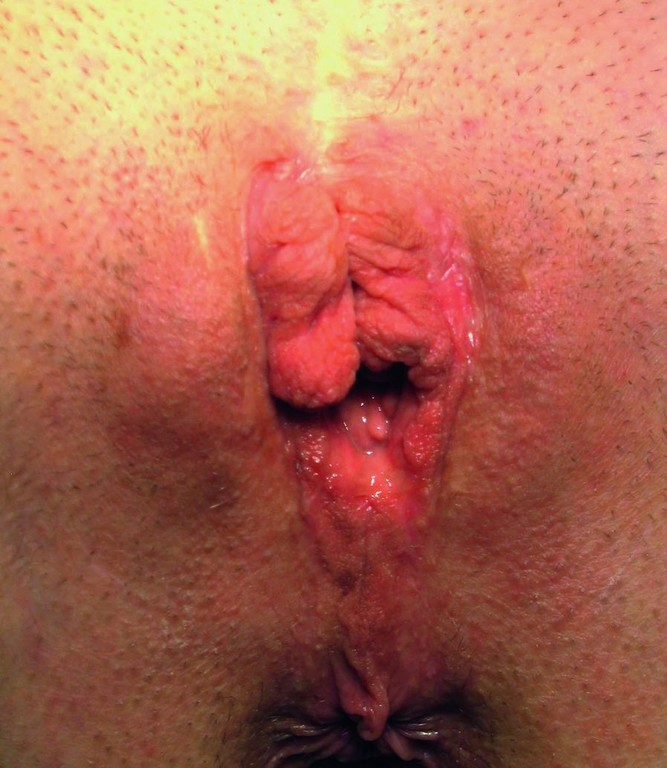 Vulva im kindesalter
