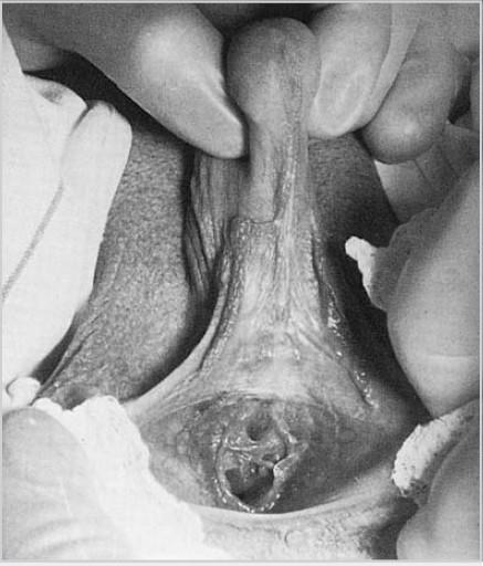 vulva im kindesalter jpg 853x1280