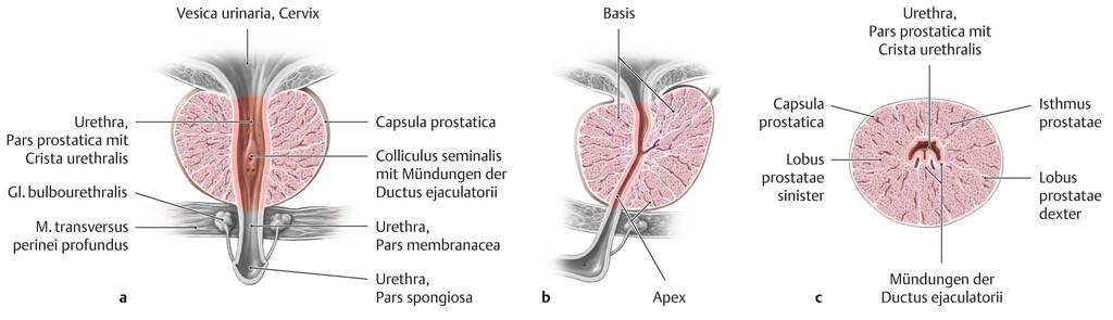 Prostata adenom diagnostika mrt počítač