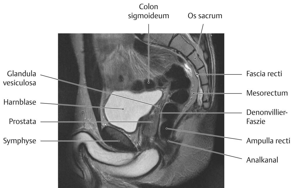 prostata anatomie mrt prosztatagyulladás kávé