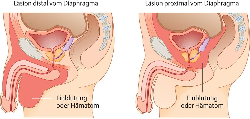 vaginale zyste schwitzen