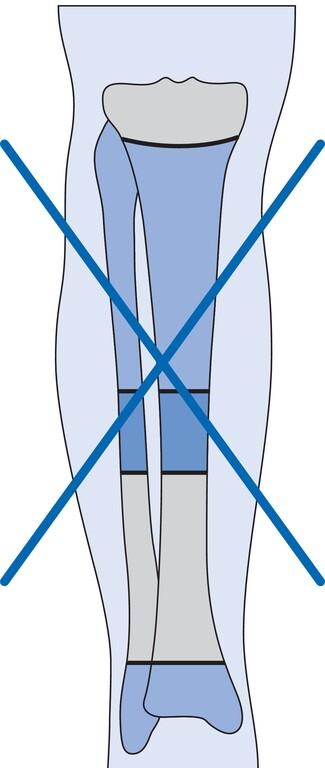 Amputation Unterschenkel