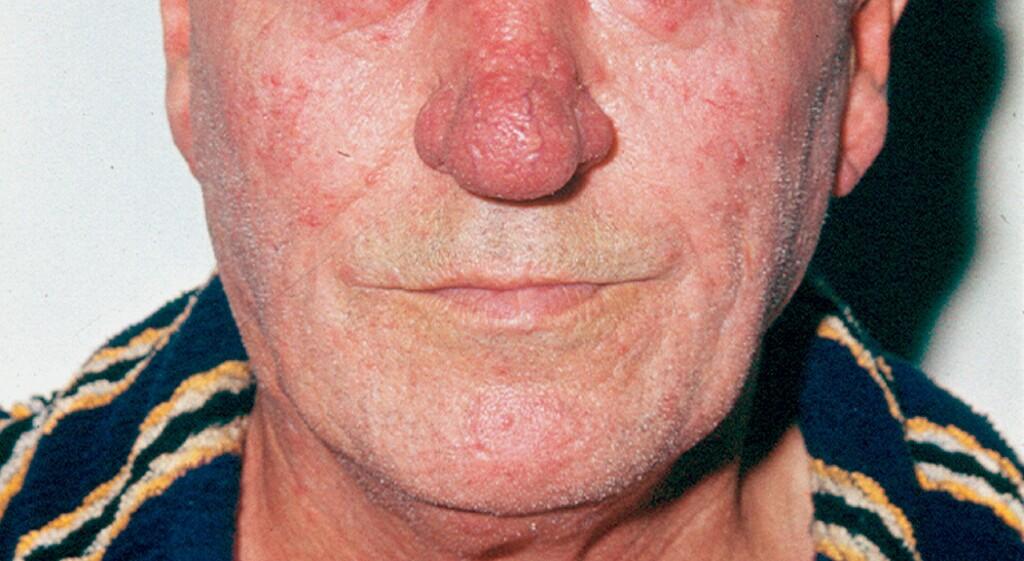 Entzündungen der äußeren Nase - eRef, Thieme