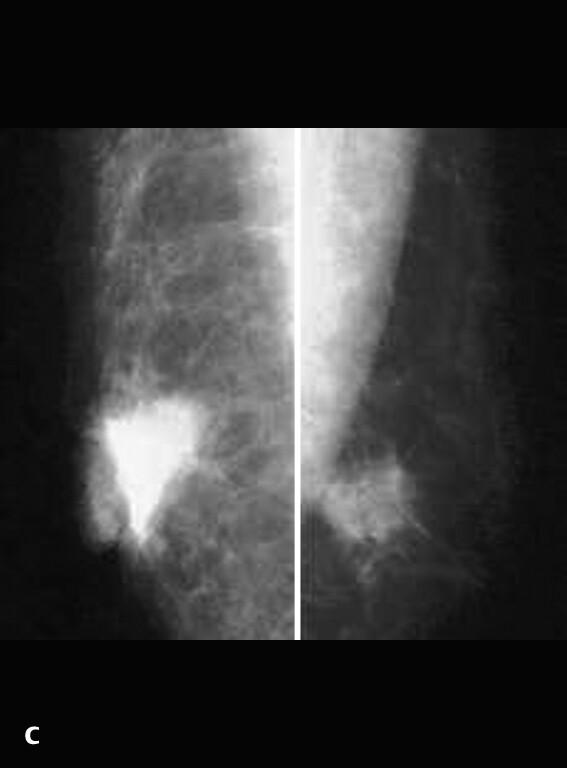 Mammographie Beim Mann