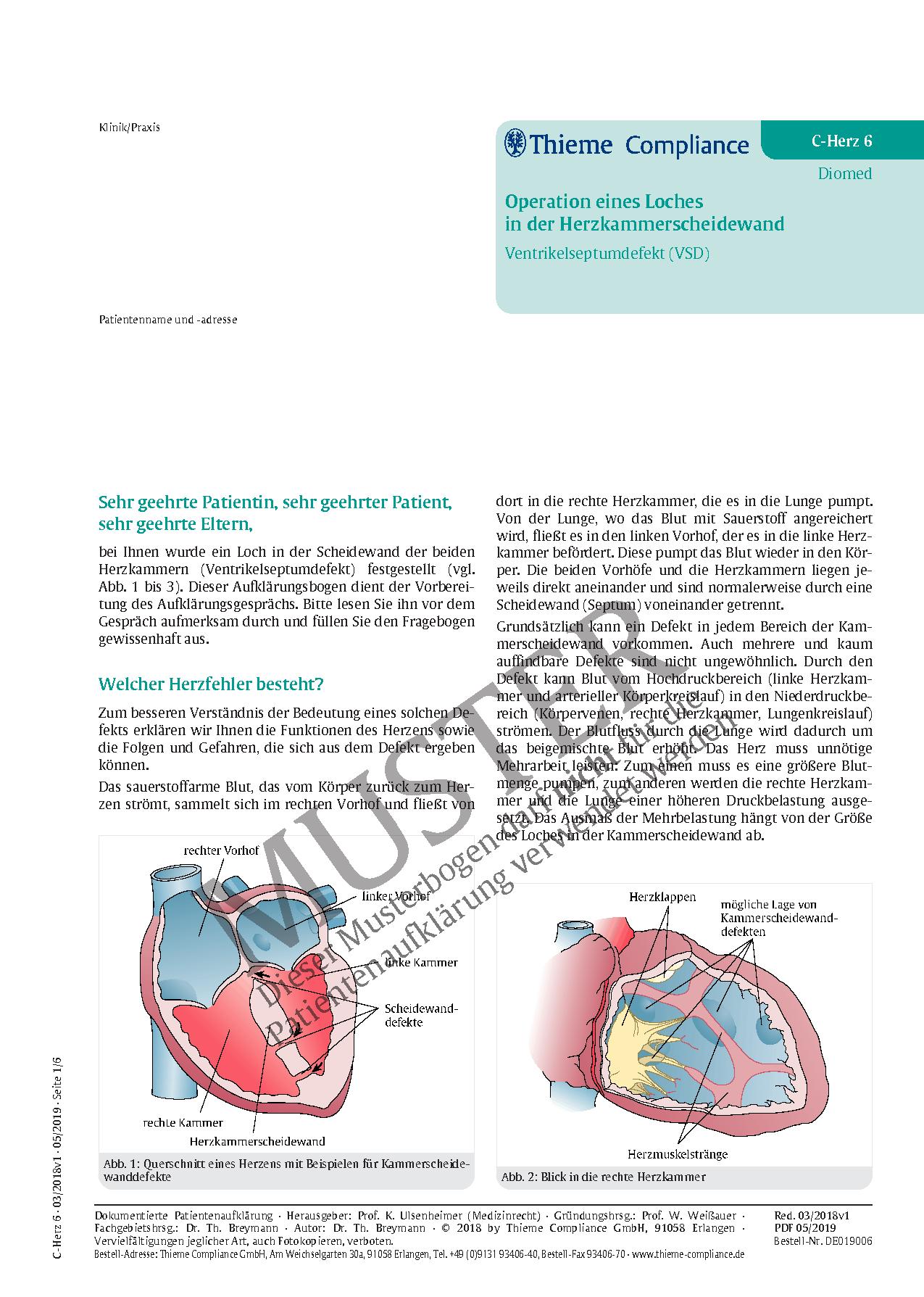 Erfreut Anatomie Herzklappen Fotos - Anatomie Von Menschlichen ...