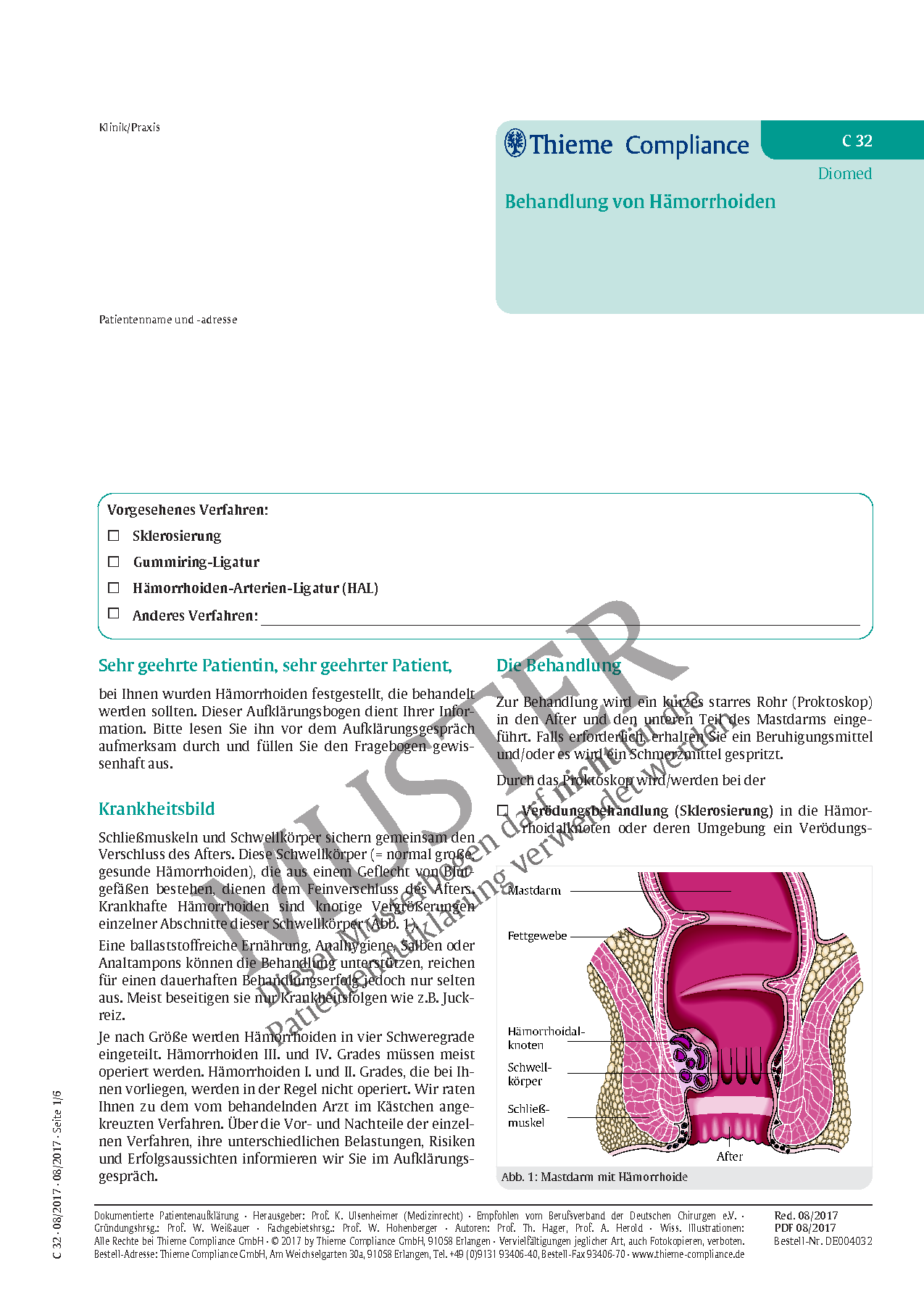 Großzügig Tubenligatur Anatomie Bilder - Physiologie Von ...