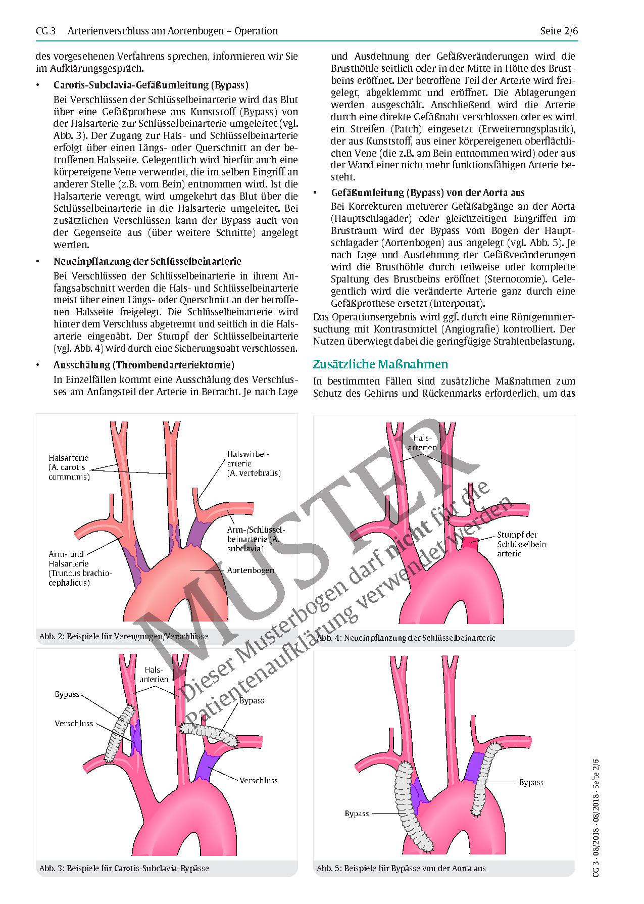 Ungewöhnlich Aortenbogen Fotos - Physiologie Von Menschlichen ...