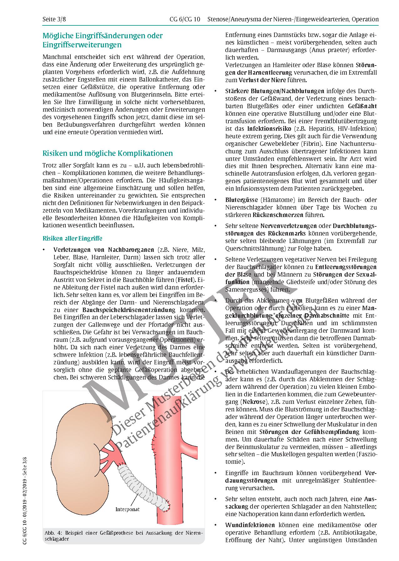 Großzügig Wo Nieren In Körper Ideen - Anatomie Ideen - finotti.info
