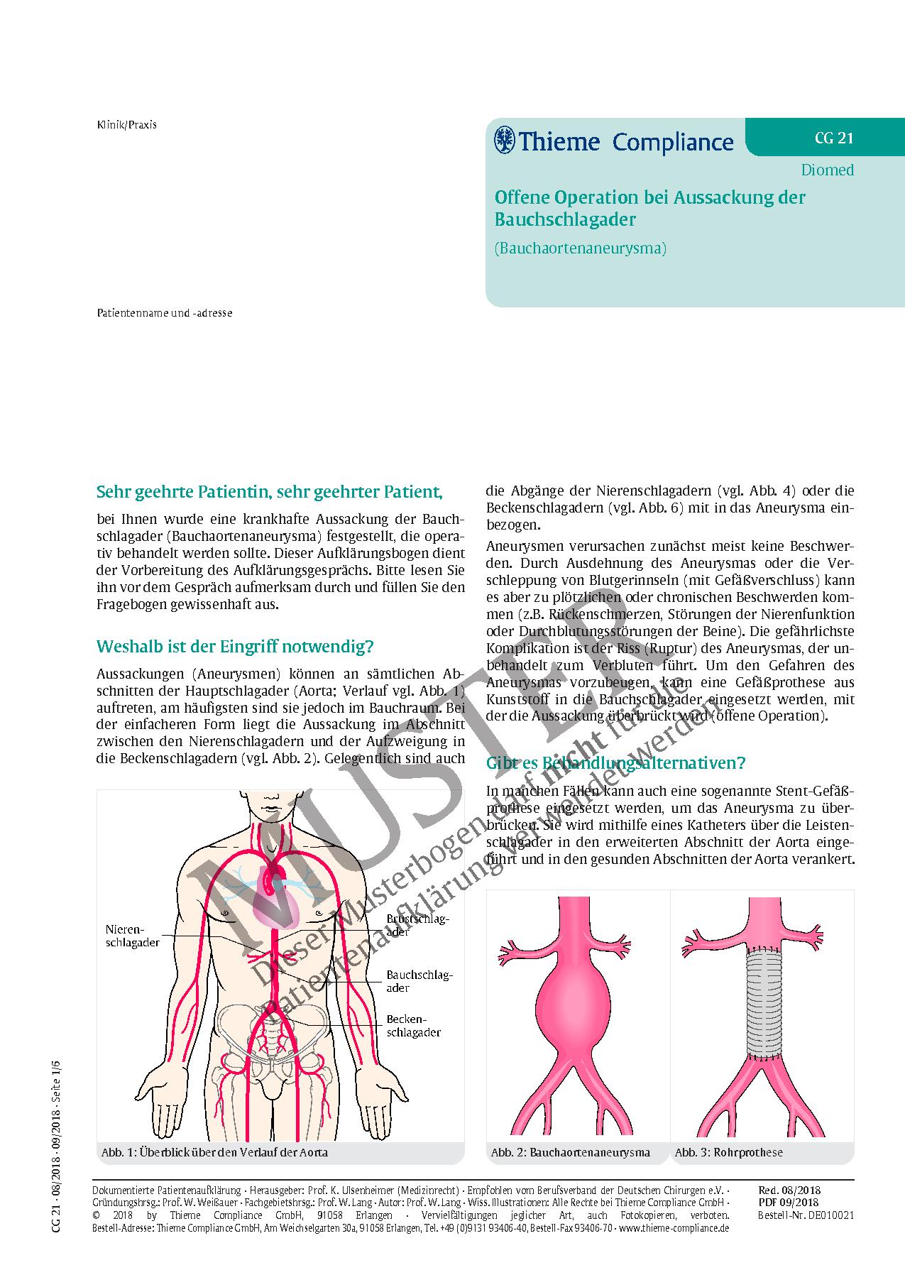 Großartig Aorta Zweige Zeitgenössisch - Physiologie Von Menschlichen ...