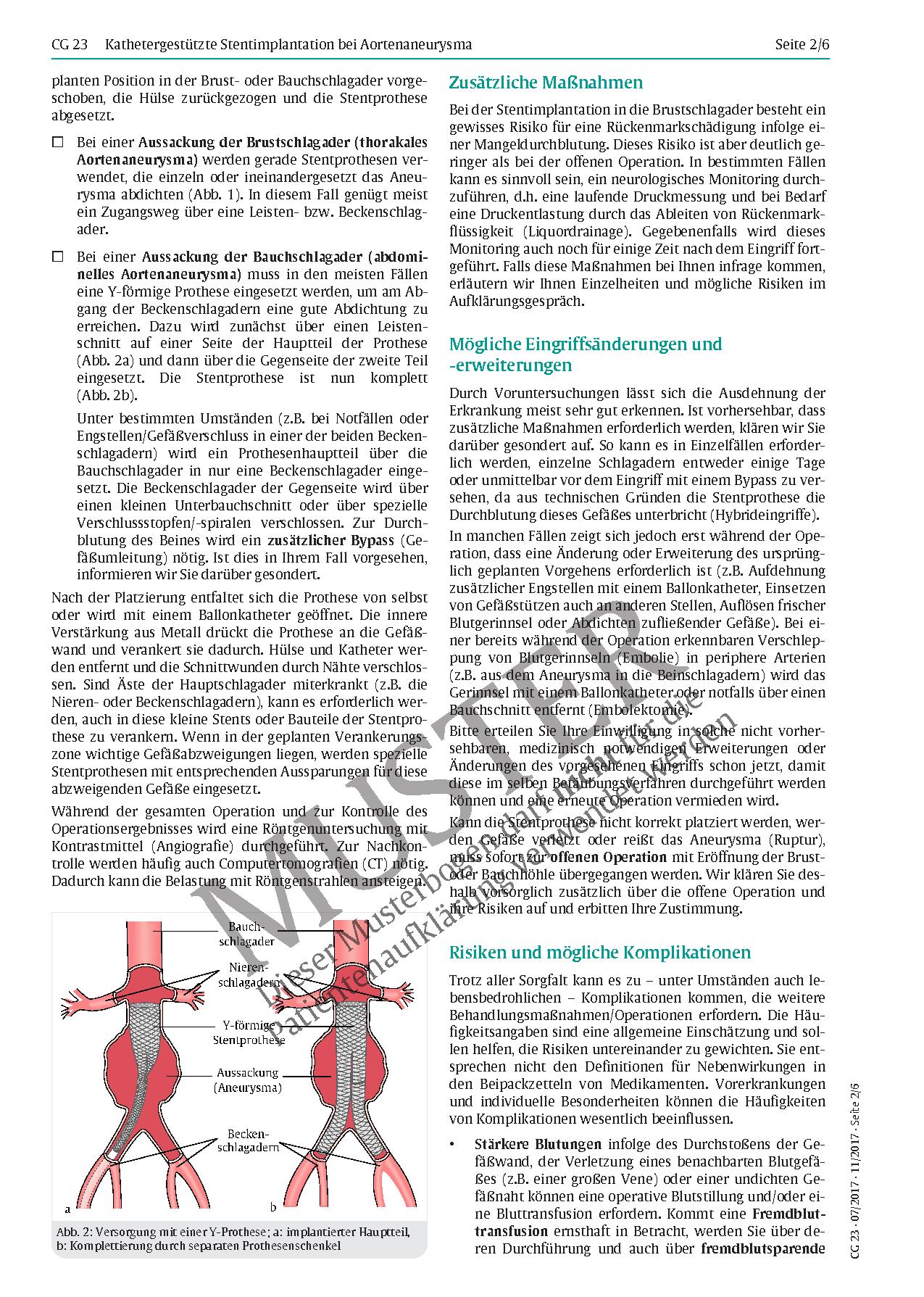 Erfreut Iliakalgefäße Anatomie Zeitgenössisch - Anatomie Von ...