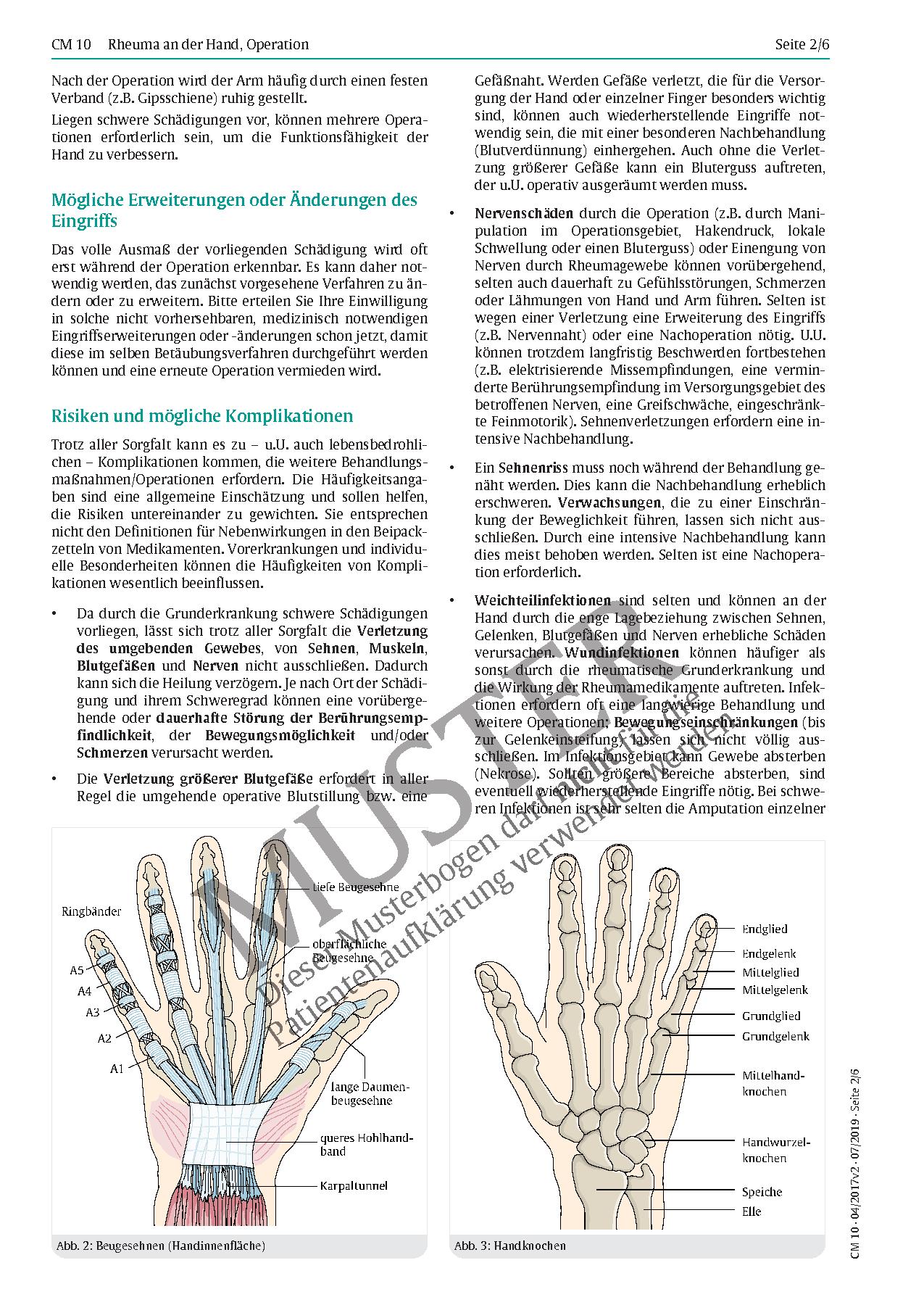Fantastisch Sehnen Hand Anatomie Ideen - Physiologie Von ...
