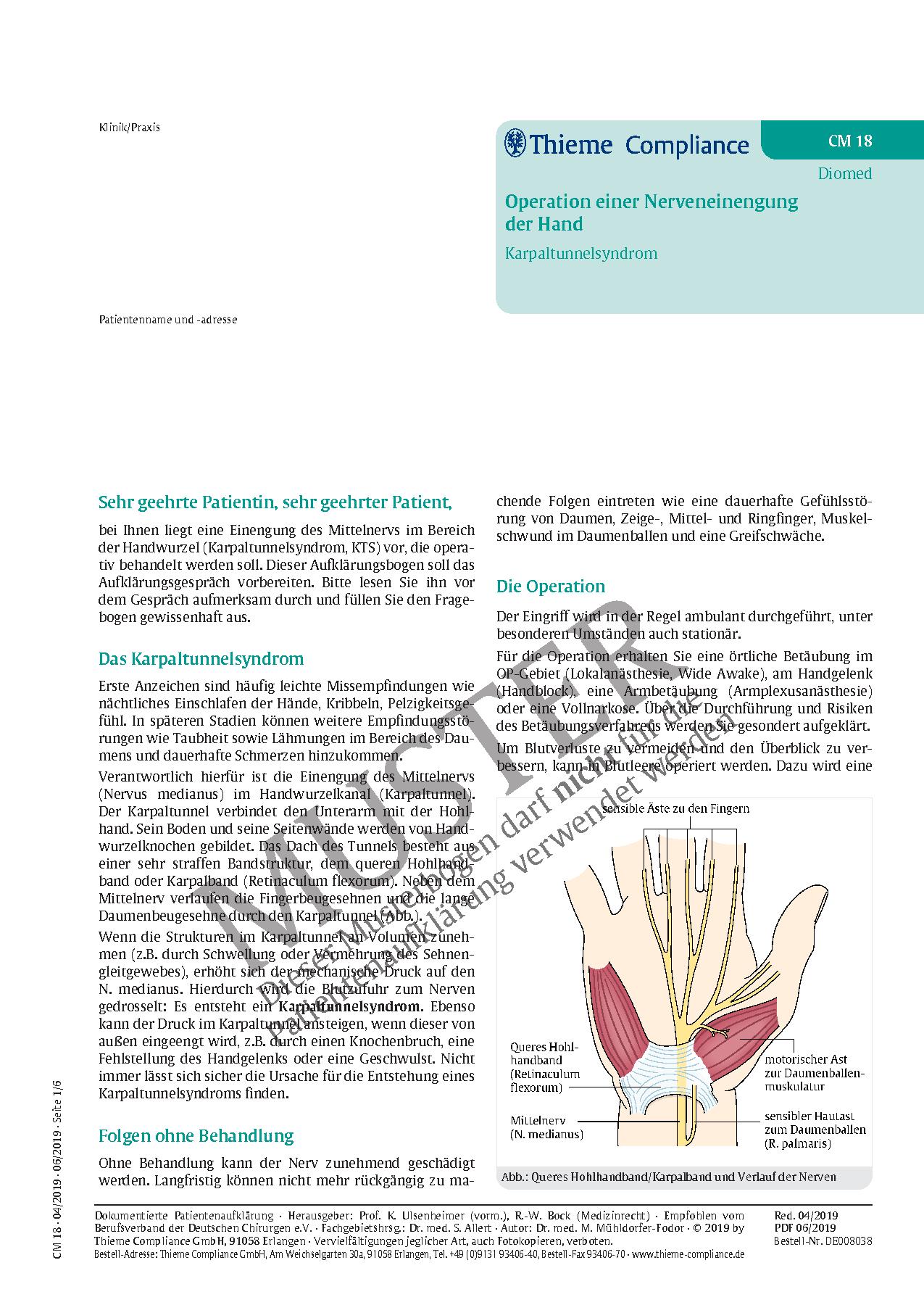 Tolle Karpaltunnel Anatomie Querschnitt Zeitgenössisch - Menschliche ...