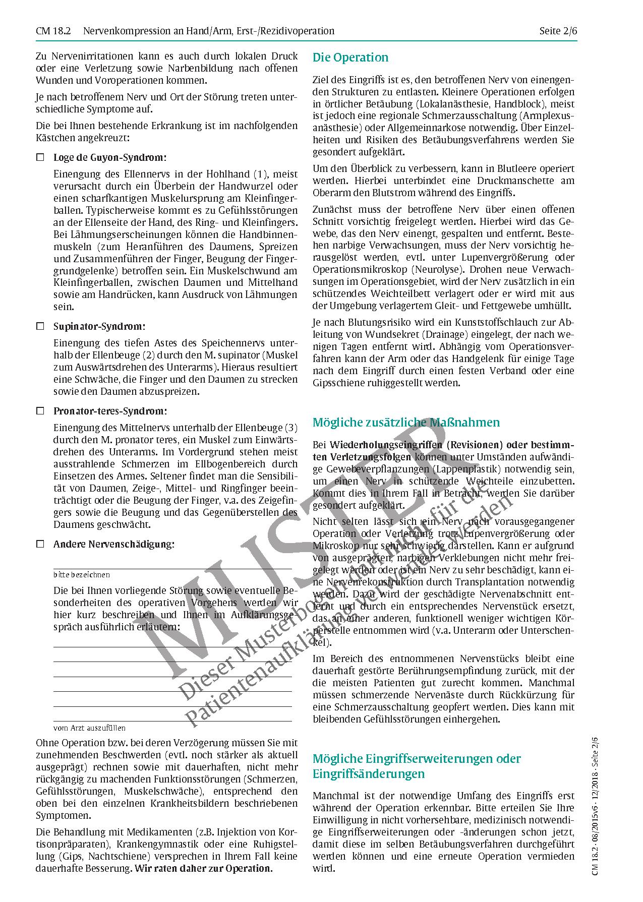 Schön Karpaltunnel Anatomie Querschnitt Fotos - Anatomie Von ...