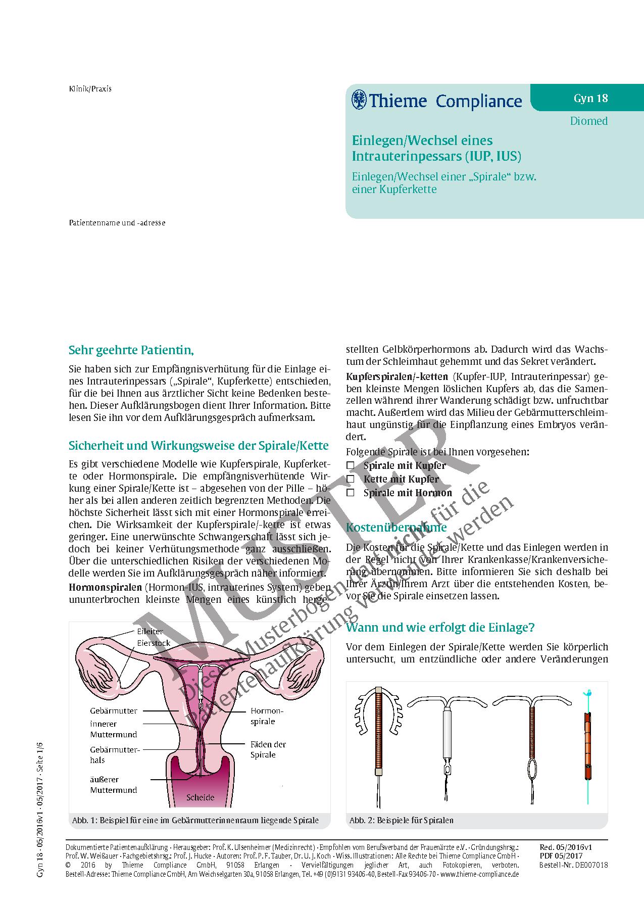 Schön Eileiter Funktion Fotos - Anatomie Von Menschlichen ...