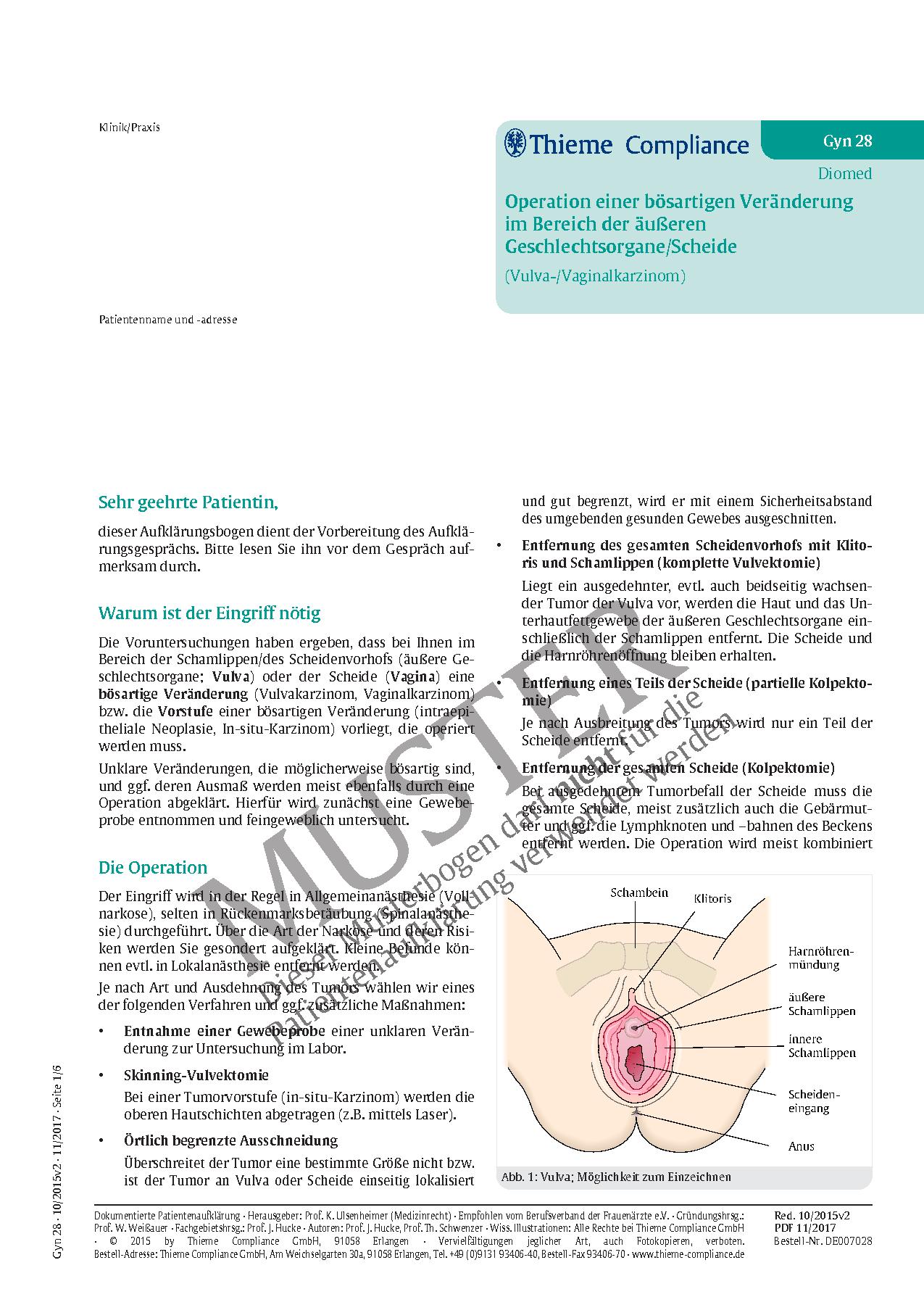Erfreut Anatomie Der Weiblichen äußeren Genitalien Zeitgenössisch ...